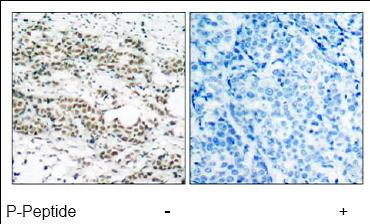 Immunohistochemistry (Formalin/PFA-fixed paraffin-embedded sections) - Anti-FOXO4/AFX (phospho S197) antibody (ab47278)
