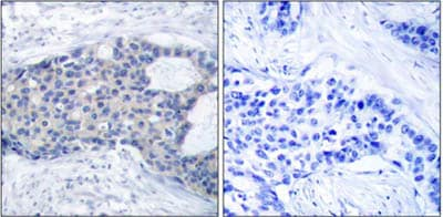 Immunohistochemistry (Formalin/PFA-fixed paraffin-embedded sections) - Anti-ZAP70 (phospho Y493) antibody (ab47290)