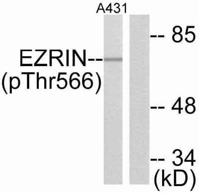 Western blot - Anti-Ezrin (phospho T567) antibody (ab47293)