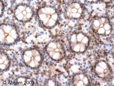 Immunohistochemistry (Formalin/PFA-fixed paraffin-embedded sections) - Anti-ERK1 (phospho T202) antibody (ab47310)