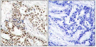 Immunohistochemistry (Formalin/PFA-fixed paraffin-embedded sections) - Anti-BRCA1 (phospho S1423) antibody (ab47325)
