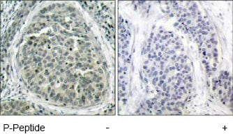 Immunohistochemistry (Formalin/PFA-fixed paraffin-embedded sections) - Anti-beta Catenin (phospho S37) antibody (ab47335)