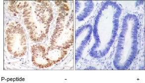 Immunohistochemistry (Formalin/PFA-fixed paraffin-embedded sections) - Anti-p38 (phospho Y182) antibody (ab47363)
