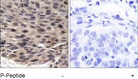 Immunohistochemistry (Formalin/PFA-fixed paraffin-embedded sections) - Anti-eIF4EBP1 (phospho T36) antibody (ab47365)
