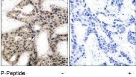 Immunohistochemistry (Formalin/PFA-fixed paraffin-embedded sections) - Anti-eIF4EBP1 (phospho T45) antibody (ab47367)