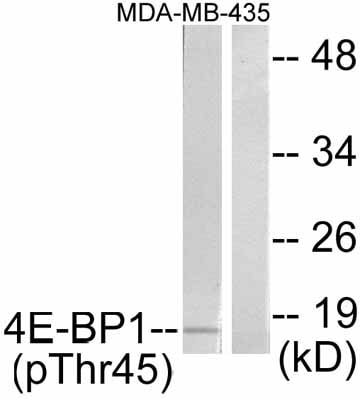 Western blot - Anti-eIF4EBP1 (phospho T45) antibody (ab47367)