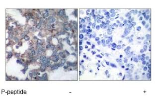 Immunohistochemistry (Formalin/PFA-fixed paraffin-embedded sections) - Anti-S6K1 (phospho S424) antibody (ab47379)