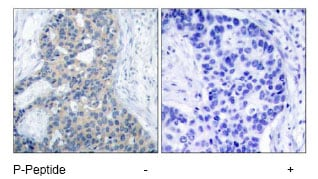 Immunohistochemistry (Formalin/PFA-fixed paraffin-embedded sections) - Anti-Stathmin 1 (phospho S37) antibody (ab47399)