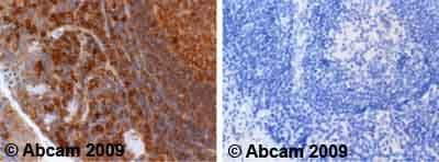 Immunohistochemistry (Formalin/PFA-fixed paraffin-embedded sections) - Anti-Cdc25A antibody (ab47400)