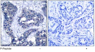 Immunohistochemistry (Formalin/PFA-fixed paraffin-embedded sections) - Anti-IRS1 (phospho S639) antibody (ab47404)