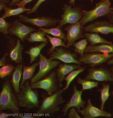 Immunocytochemistry/ Immunofluorescence - Anti-STAT1 antibody (ab47425)