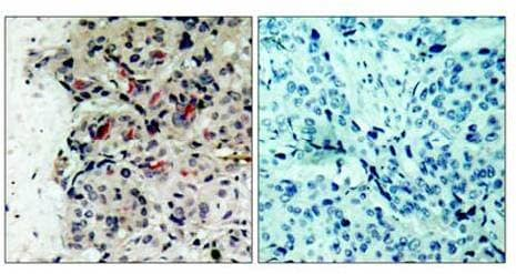 Immunohistochemistry (Formalin/PFA-fixed paraffin-embedded sections) - Anti-JAK1 antibody (ab47435)