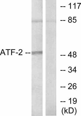 Western blot - Anti-ATF2 antibody (ab47476)