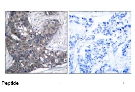 Immunohistochemistry (Formalin/PFA-fixed paraffin-embedded sections) - Anti-EIF2S1 antibody (ab47508)