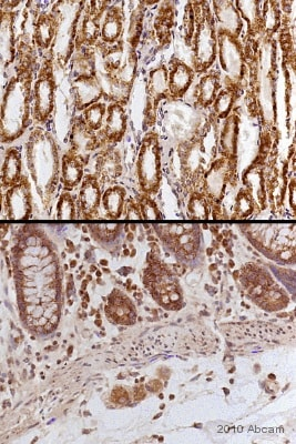 Immunohistochemistry (Formalin/PFA-fixed paraffin-embedded sections) - Anti-mtTFA antibody (ab47517)