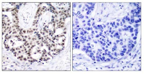 Immunohistochemistry (Formalin/PFA-fixed paraffin-embedded sections) - Anti-Androgen Receptor (phospho S650) antibody (ab47563)