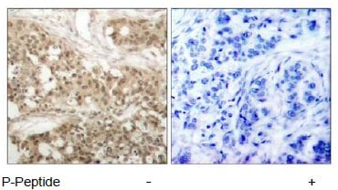 Immunohistochemistry (Formalin/PFA-fixed paraffin-embedded sections) - Anti-PKC theta/PRKCQ (phospho S676) antibody (ab47774)