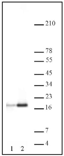 Western blot - Anti-Histone H3 (acetyl K9 + K14 + K18 + K23 + K27) antibody - ChIP Grade (ab47915)