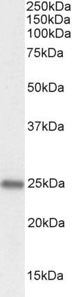 Western blot - Anti-PGRMC1 antibody (ab48012)