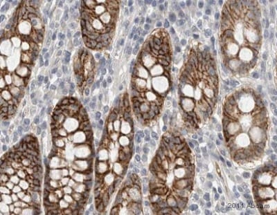 Immunohistochemistry (Formalin/PFA-fixed paraffin-embedded sections) - Anti-PERP antibody (ab48032)