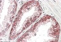 Immunohistochemistry (Formalin/PFA-fixed paraffin-embedded sections) - Anti-CTNNA1 antibody (ab48034)