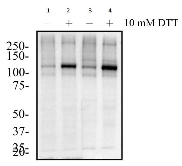 Western blot - Anti-IRE1 (phospho S724) antibody (ab48187)