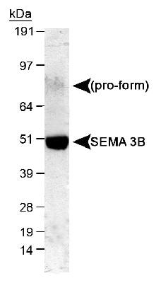 Western blot - Anti-SEMA3B antibody (ab48197)