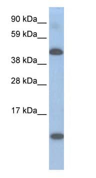 Western blot - Anti-LCOR antibody (ab48339)