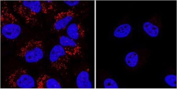Immunocytochemistry/ Immunofluorescence - Anti-LC3B antibody - Autophagosome Marker (ab48394)