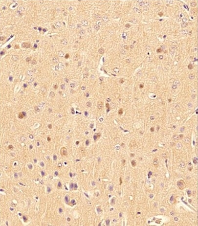 Immunohistochemistry (Formalin/PFA-fixed paraffin-embedded sections) - Anti-LC3B antibody - Autophagosome Marker (ab48394)