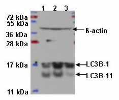 免疫印迹-抗LC3B抗体-自噬体标记(ab48394)