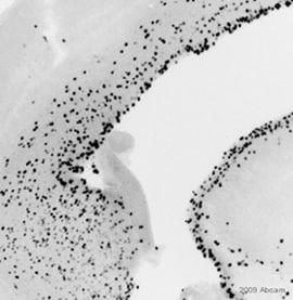 Immunohistochemistry (Formalin/PFA-fixed paraffin-embedded sections) - Anti-Cyclin B1 antibody (ab48574)
