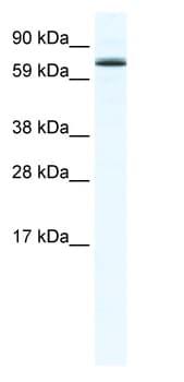 Western blot - Anti-Foxo6 antibody (ab48730)