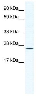 Western blot - Anti-BRF1 antibody (ab49122)