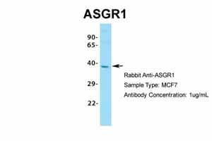 Western blot - Anti-Asialoglycoprotein Receptor 1/HL-1 antibody (ab49355)