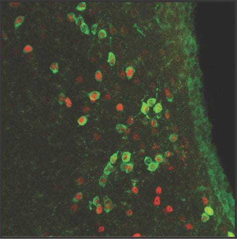 Immunocytochemistry/ Immunofluorescence - Anti-Arp2 antibody [FMS96] (ab49674)