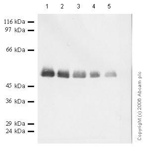 Western blot - Anti-Cathepsin D antibody (ab49787)