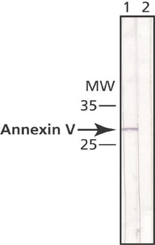 Western blot - Anti-Annexin V antibody [AN5] (ab49823)
