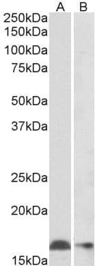 Western blot - Anti-Iba1 antibody (ab5076)