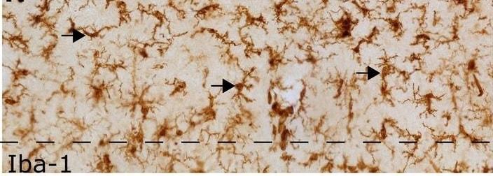 Immunohistochemistry (Formalin/PFA-fixed paraffin-embedded sections) - Anti-Iba1 antibody (ab5076)