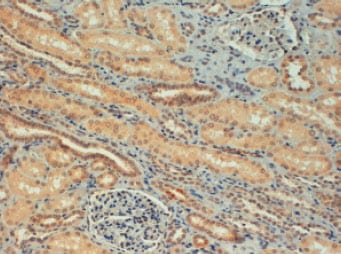 Immunohistochemistry (Formalin/PFA-fixed paraffin-embedded sections) - Anti-FOXC1 antibody - ChIP Grade (ab5079)