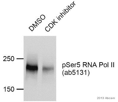 Western blot - Anti-RNA polymerase II CTD repeat YSPTSPS (phospho S5) antibody - ChIP Grade (ab5131)