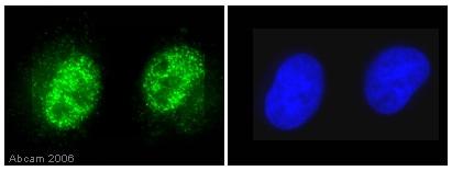 Immunocytochemistry/ Immunofluorescence - Anti-Histone H3 (phospho T11) antibody (ab5168)