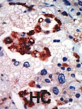 Immunohistochemistry (Formalin/PFA-fixed paraffin-embedded sections) - Anti-PKC iota antibody (ab5282)