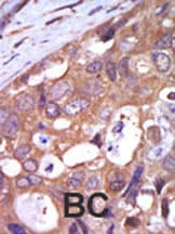 Immunohistochemistry (Formalin/PFA-fixed paraffin-embedded sections) - Anti-PKC mu antibody (ab5283)