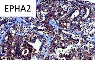 Immunohistochemistry (Formalin/PFA-fixed paraffin-embedded sections) - Anti-Eph receptor A2 antibody (ab5386)