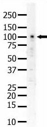 Western blot - Anti-Eph receptor A5 antibody (ab5397)