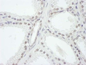 Immunohistochemistry (Formalin/PFA-fixed paraffin-embedded sections) - Anti-KAT13A / SRC1 antibody (ab5407)