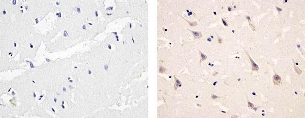 Immunohistochemistry (Formalin/PFA-fixed paraffin-embedded sections) - Anti-PDGFR alpha (phospho Y754) antibody (ab5460)