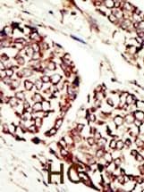 Immunohistochemistry (Formalin/PFA-fixed paraffin-embedded sections) - Anti-ErbB 3 antibody (ab5470)
